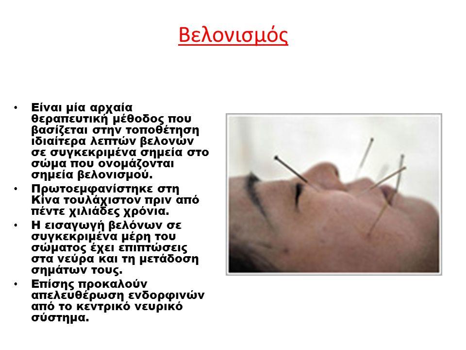 Βελονισμός Είναι μία αρχαία θεραπευτική μέθοδος που βασίζεται στην τοποθέτηση ιδιαίτερα λεπτών βελονών σε συγκεκριμένα σημεία στο σώμα που ονομάζονται