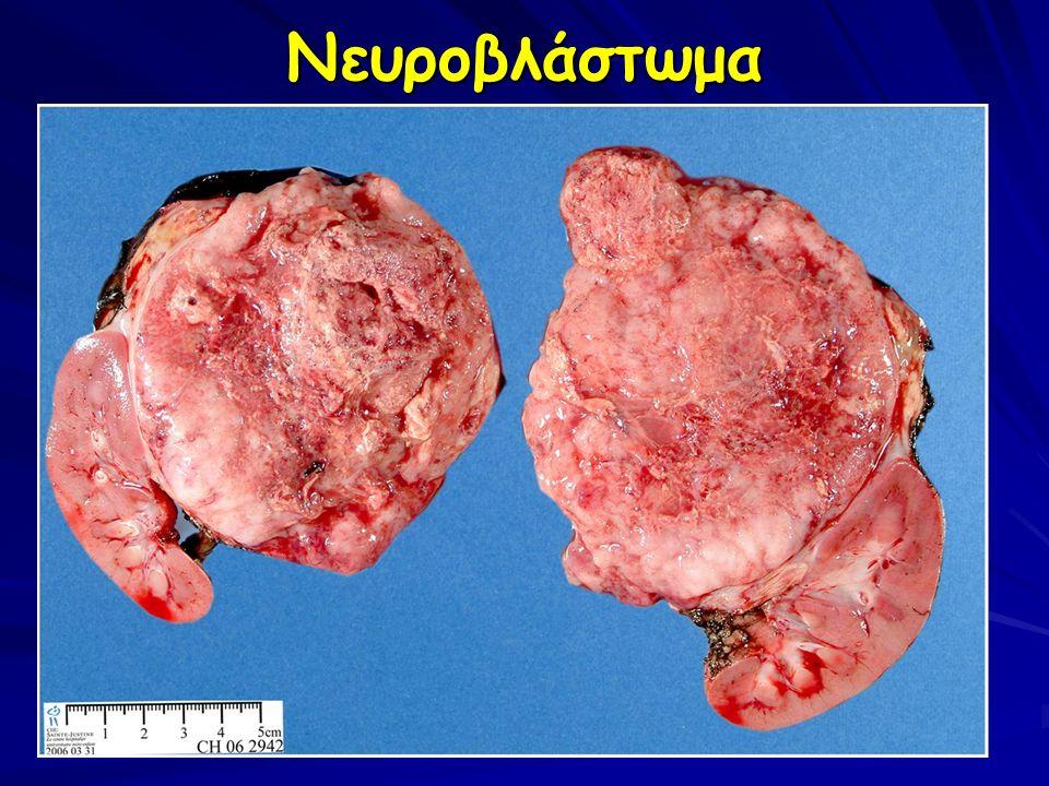 Νευροβλάστωμα