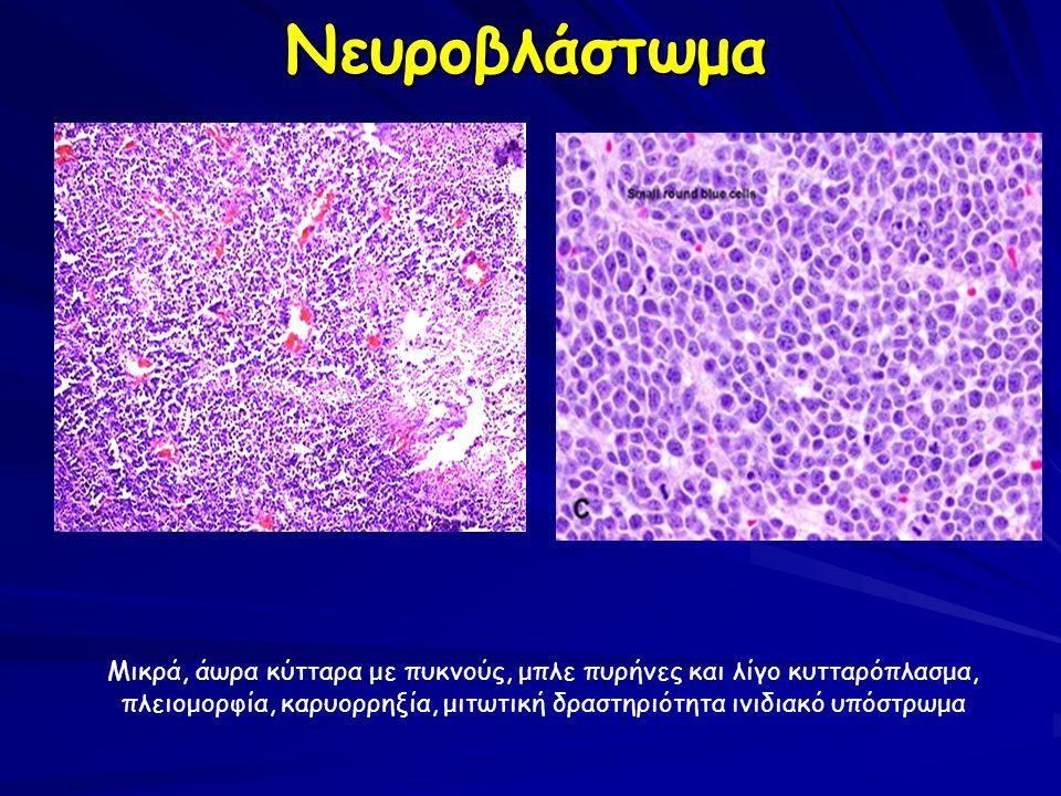Μικρά, άωρα κύτταρα με πυκνούς, μπλε πυρήνες και λίγο κυτταρόπλασμα, πλειομορφία, καρυορρηξία, μιτωτική δραστηριότητα ινιδιακό υπόστρωμα Νευροβλάστωμα