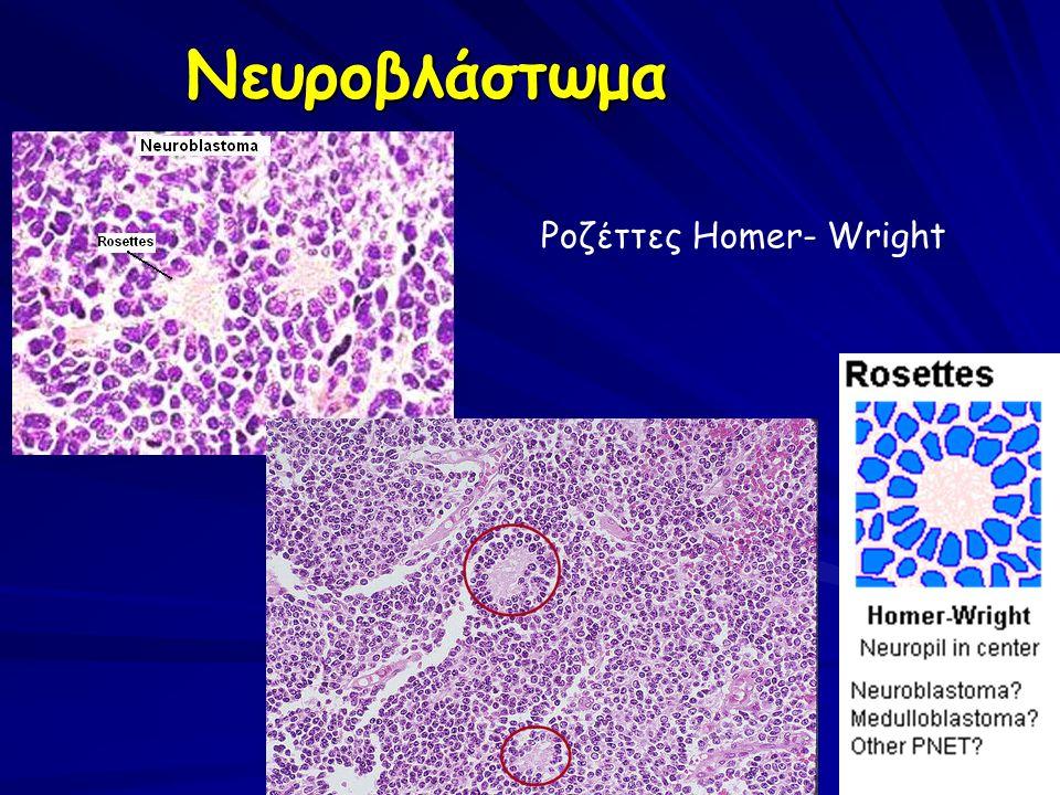 Ροζέττες Homer- Wright Νευροβλάστωμα