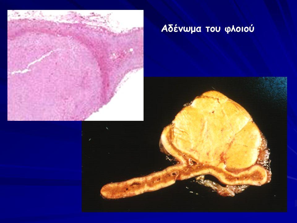 Αδένωμα του φλοιού