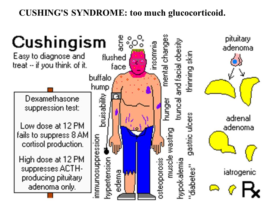CUSHING S SYNDROME: too much glucocorticoid.