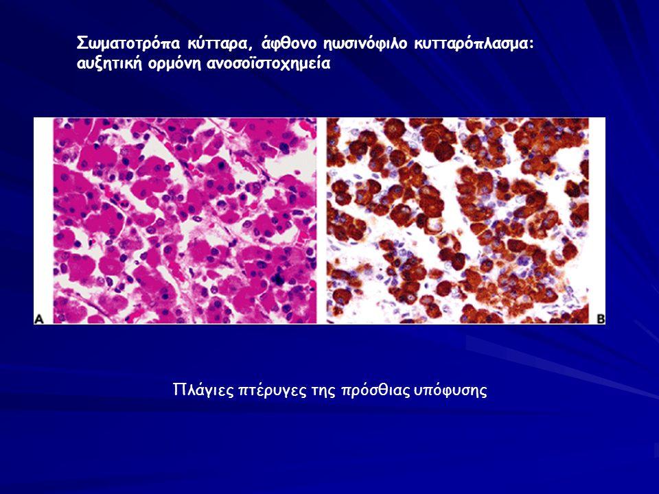 Πλάγιες πτέρυγες της πρόσθιας υπόφυσης Σωματοτρόπa κύτταρα, άφθονο ηωσινόφιλο κυτταρόπλασμα: aυξητική ορμόνη ανοσοϊστοχημεία