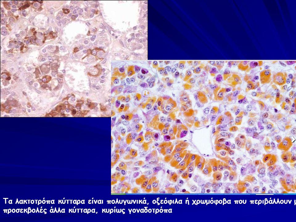 Κλινική Περίπτωση 1 η Ιστορικό: Γυναίκα 33 ετών εμφανίζει διαταραχές του εμμηνορυσιακού κύκλου, αμηνόρροια και γαλακτόρροια.