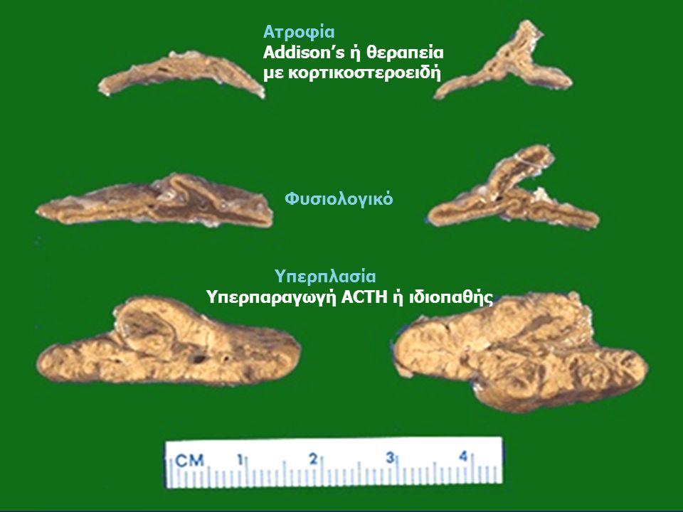 Ατροφία Addison's ή θεραπεία με κορτικοστεροειδή Φυσιολογικό Υπερπλασία Υπερπαραγωγή ACTH ή ιδιοπαθής