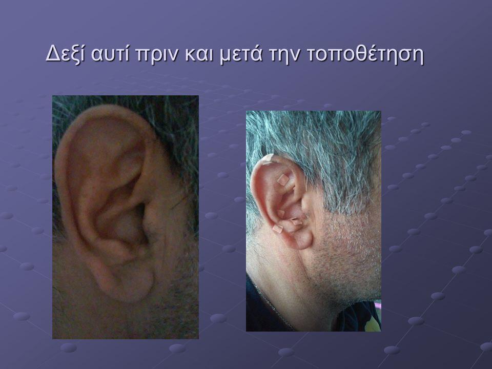 Δεξί αυτί πριν και μετά την τοποθέτηση