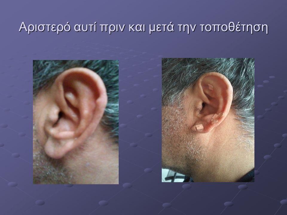 Αριστερό αυτί πριν και μετά την τοποθέτηση
