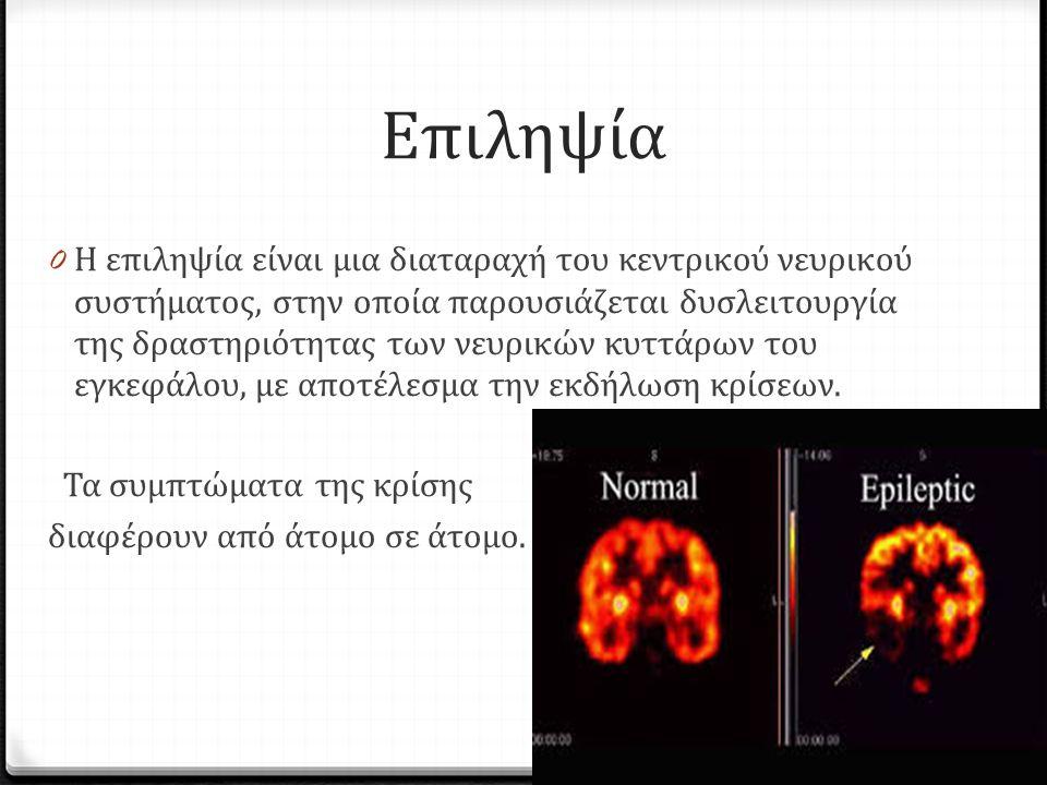 Επιληψία 0 Η επιληψία είναι μια διαταραχή του κεντρικού νευρικού συστήματος, στην οποία παρουσιάζεται δυσλειτουργία της δραστηριότητας των νευρικών κυττάρων του εγκεφάλου, με αποτέλεσμα την εκδήλωση κρίσεων.