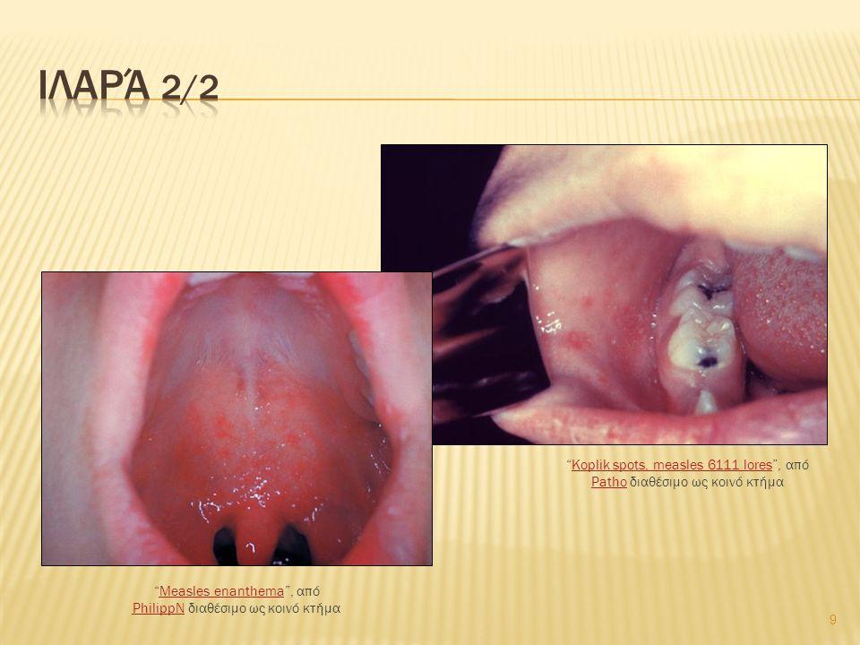 9 Measles enanthema , από PhilippN διαθέσιμο ως κοινό κτήμαMeasles enanthema PhilippN Koplik spots, measles 6111 lores , από Patho διαθέσιμο ως κοινό κτήμαKoplik spots, measles 6111 lores Patho