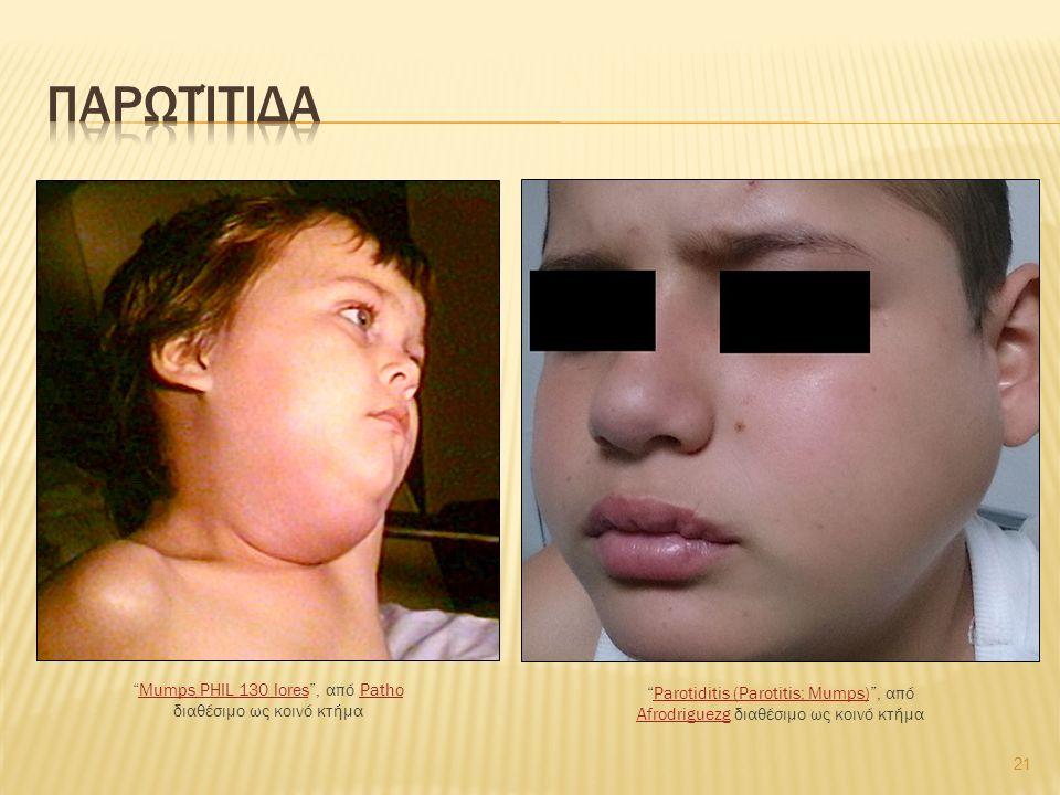 21 Mumps PHIL 130 lores , από Patho διαθέσιμο ως κοινό κτήμαMumps PHIL 130 loresPatho Parotiditis (Parotitis; Mumps) , από Afrodriguezg διαθέσιμο ως κοινό κτήμαParotiditis (Parotitis; Mumps) Afrodriguezg