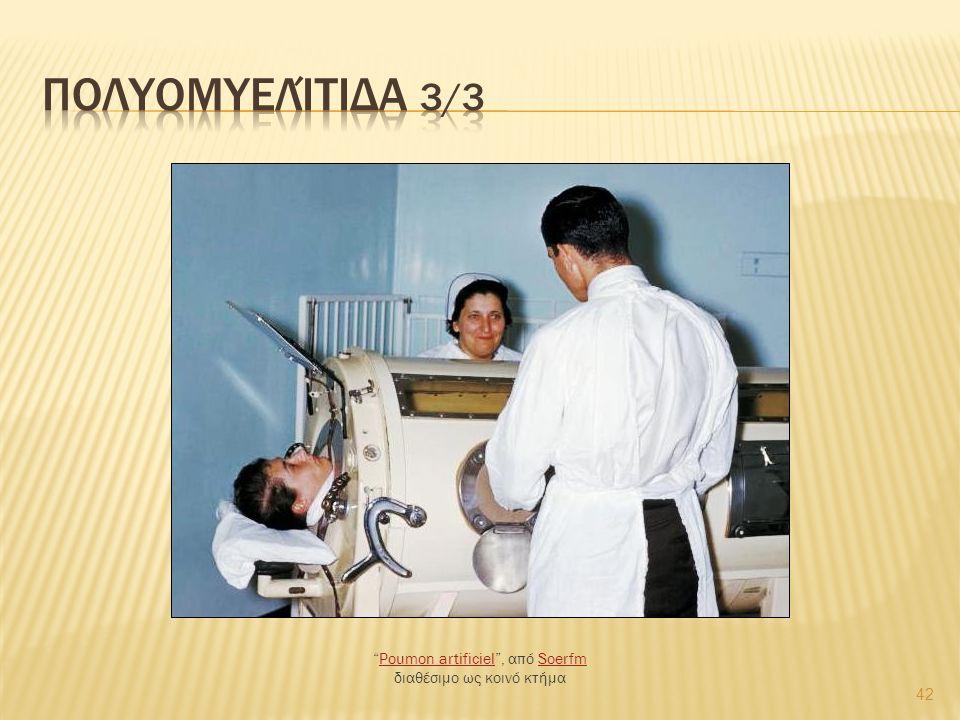 42 Poumon artificiel , από Soerfm διαθέσιμο ως κοινό κτήμαPoumon artificielSoerfm