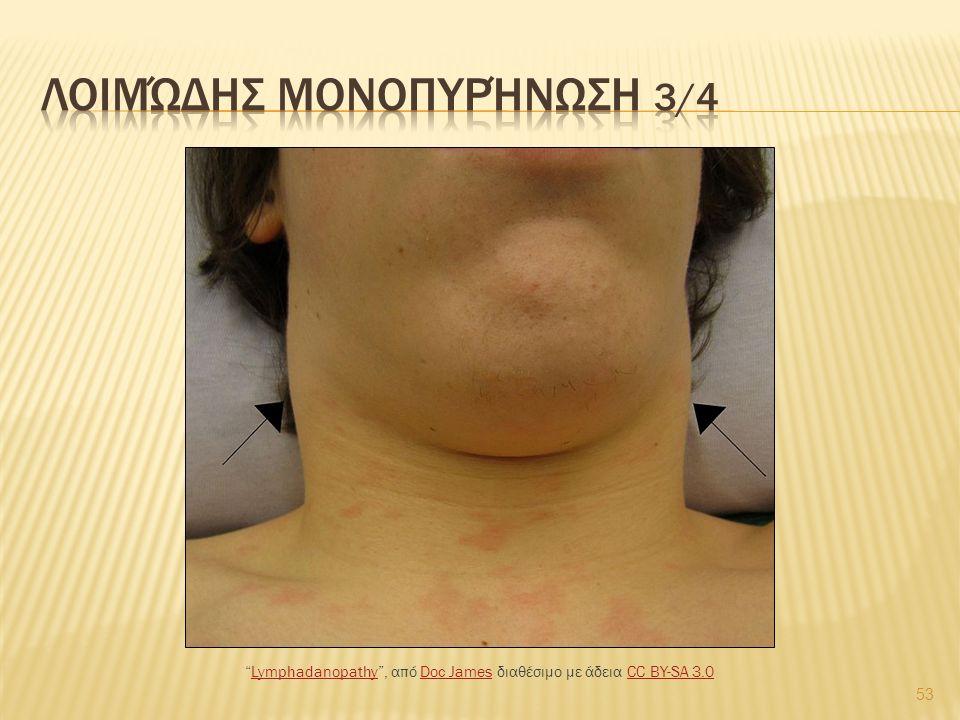 53 Lymphadanopathy , από Doc James διαθέσιμο με άδεια CC BY-SA 3.0LymphadanopathyDoc JamesCC BY-SA 3.0
