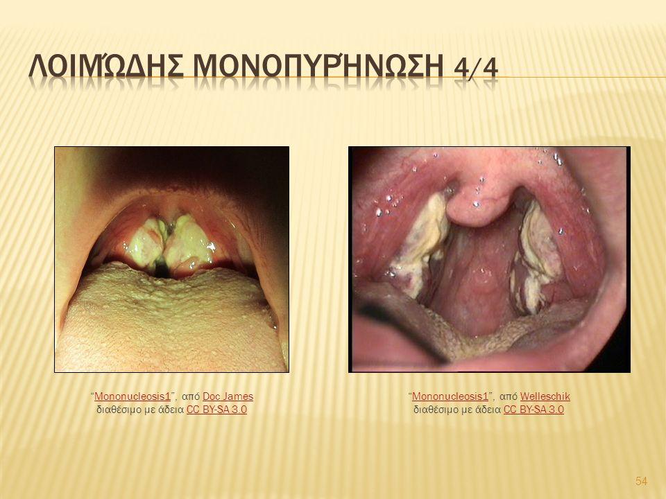 54 Mononucleosis1 , από Welleschik διαθέσιμο με άδεια CC BY-SA 3.0Mononucleosis1WelleschikCC BY-SA 3.0 Mononucleosis1 , από Doc James διαθέσιμο με άδεια CC BY-SA 3.0Mononucleosis1Doc JamesCC BY-SA 3.0