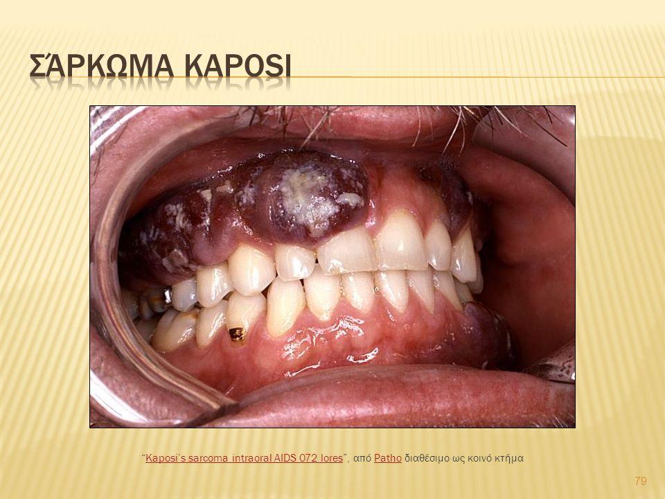 79 Kaposi's sarcoma intraoral AIDS 072 lores , από Patho διαθέσιμο ως κοινό κτήμαKaposi's sarcoma intraoral AIDS 072 loresPatho