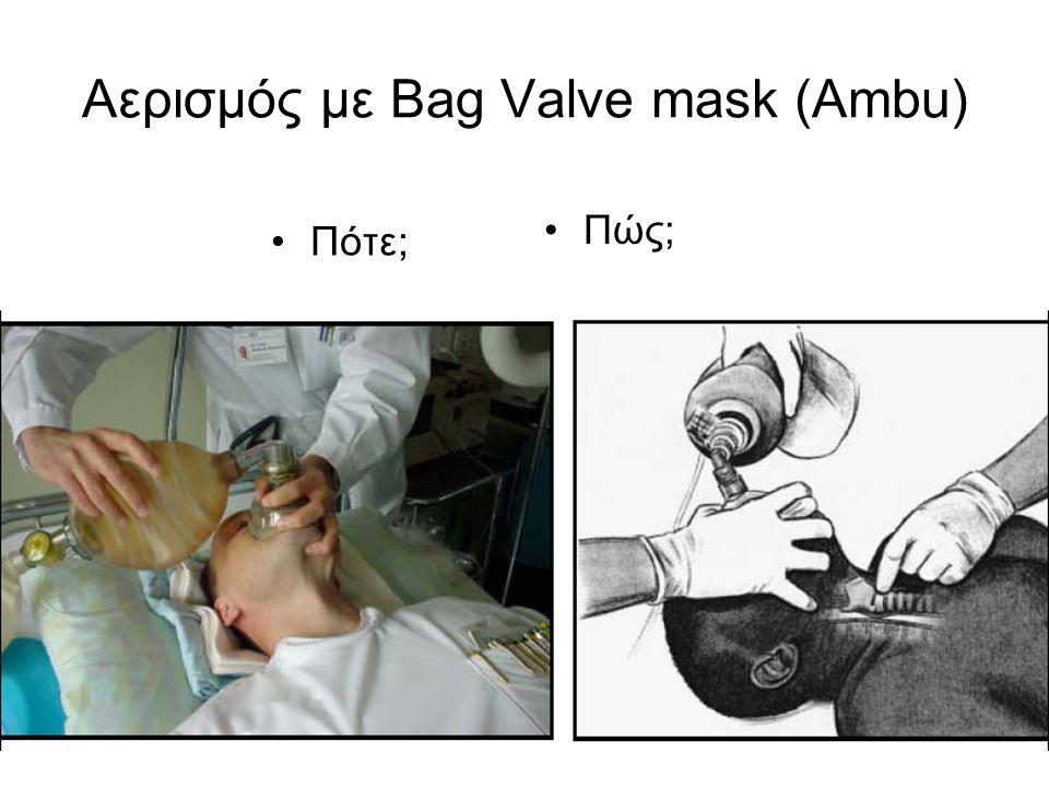 Αερισμός με Bag Valve mask (Ambu) Πότε; Πώς;
