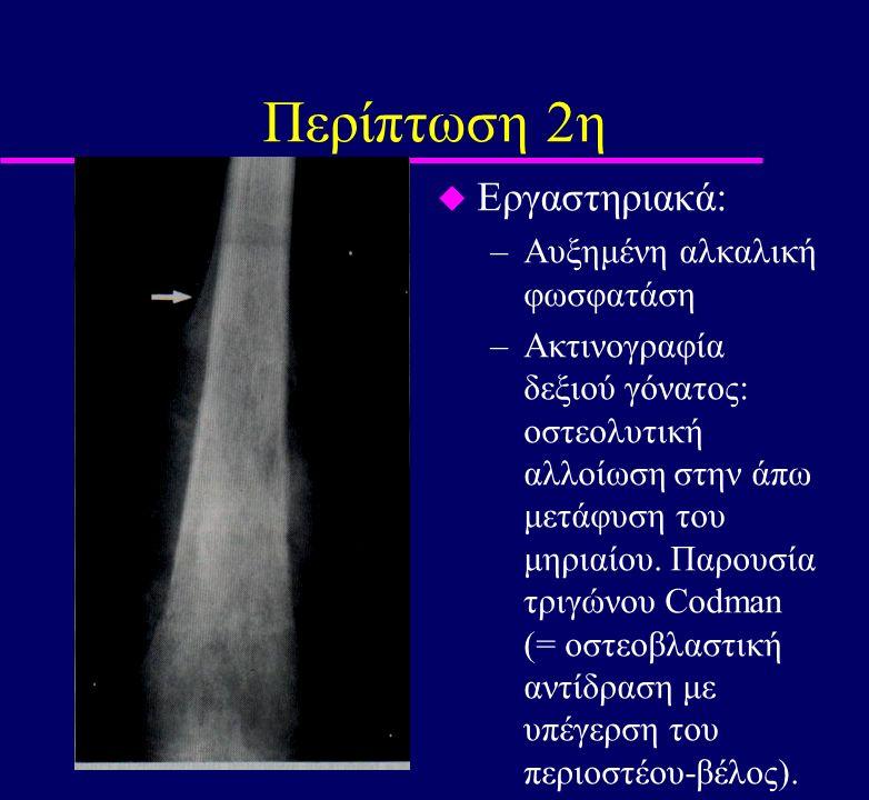 Περίπτωση 2η u Εργαστηριακά: –Αυξημένη αλκαλική φωσφατάση –Ακτινογραφία δεξιού γόνατος: οστεολυτική αλλοίωση στην άπω μετάφυση του μηριαίου. Παρουσία
