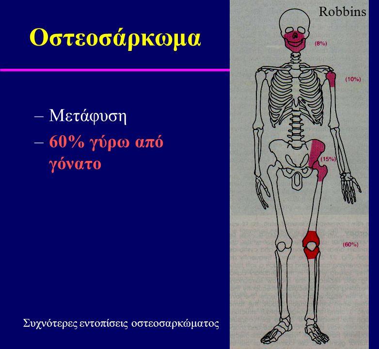 Οστεοσάρκωμα –Μετάφυση –60% γύρω από γόνατο Robbins Συχνότερες εντοπίσεις οστεοσαρκώματος