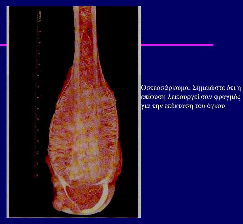 Οστεοσάρκωμα. Σημειώστε ότι η επίφυση λειτουργεί σαν φραγμός για την επέκταση του όγκου