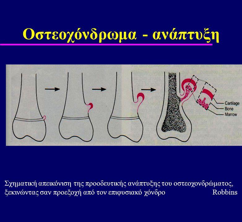 Οστεοχόνδρωμα - ανάπτυξη Σχηματική απεικόνιση της προοδευτικής ανάπτυξης του οστεοχονδρώματος, ξεκινώντας σαν προεξοχή από τον επιφυσιακό χόνδροRobbin