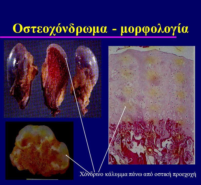 Οστεοχόνδρωμα - μορφολογία Χόνδρινο κάλυμμα πάνω από οστική προεχοχή