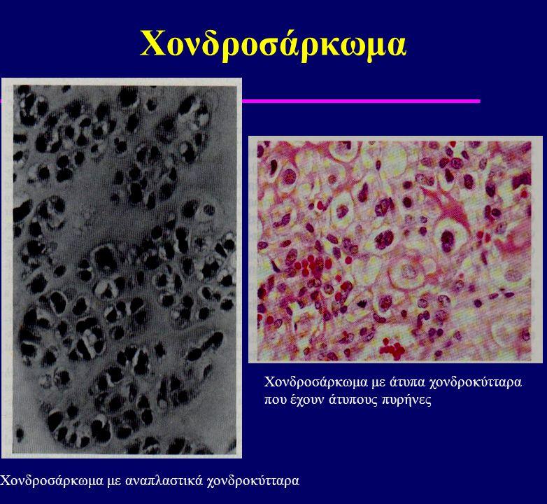 Χονδροσάρκωμα Χονδροσάρκωμα με αναπλαστικά χονδροκύτταρα Χονδροσάρκωμα με άτυπα χονδροκύτταρα που έχουν άτυπους πυρήνες