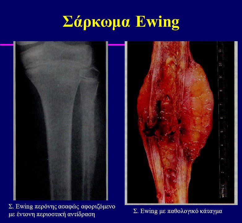 Σάρκωμα Ewing Σ. Ewing περόνης ασαφώς αφοριζόμενο με έντονη περιοστική αντίδραση Σ. Ewing με παθολογικό κάταγμα