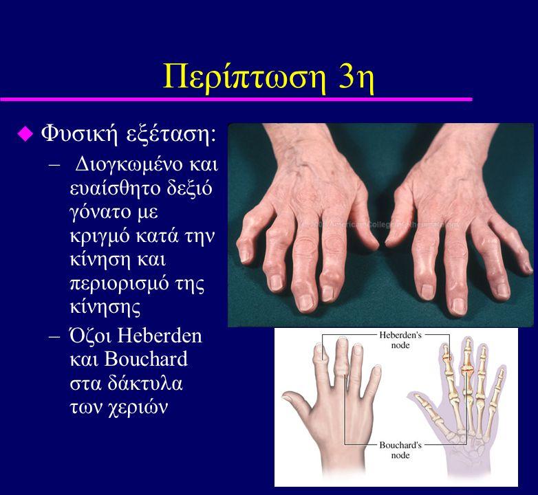 Περίπτωση 3η u Φυσική εξέταση: – Διογκωμένο και ευαίσθητο δεξιό γόνατο με κριγμό κατά την κίνηση και περιορισμό της κίνησης –Όζοι Heberden και Bouchar
