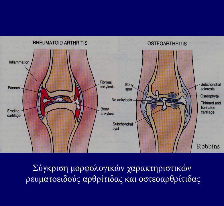 Σύγκριση μορφολογικών χαρακτηριστικών ρευματοειδούς αρθρίτιδας και οστεοαρθρίτιδας Robbins