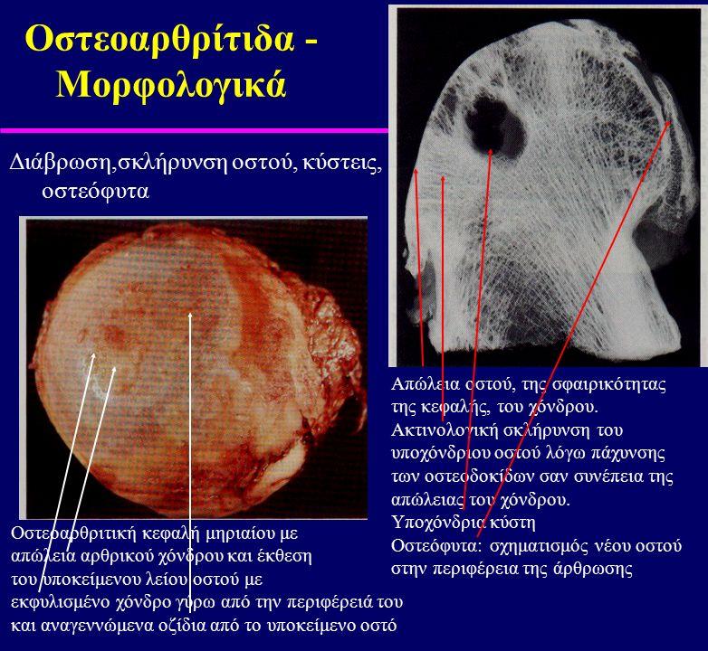 Οστεοαρθρίτιδα - Μορφολογικά Διάβρωση,σκλήρυνση οστού, κύστεις, οστεόφυτα Οστεοαρθριτική κεφαλή μηριαίου με απώλεια αρθρικού χόνδρου και έκθεση του υπ