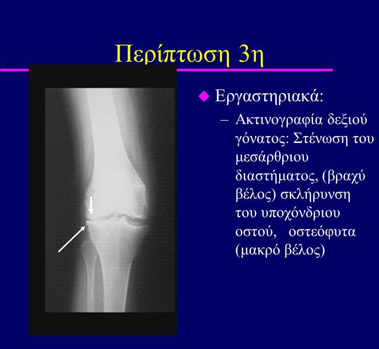 Περίπτωση 3η u Εργαστηριακά: –Ακτινογραφία δεξιού γόνατος: Στένωση του μεσάρθριου διαστήματος, (βραχύ βέλος) σκλήρυνση του υποχόνδριου οστού, οστεόφυτ