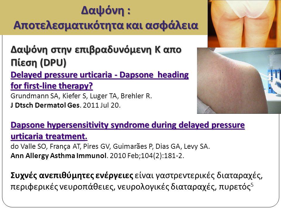 Δαψόνη : Αποτελεσματικότητα και ασφάλεια Δαψόνη στην επιβραδυνόμενη Κ απο Πίεση (DPU) Delayed pressure urticaria - Dapsone heading Delayed pressure urticaria - Dapsone heading for first-line therapy.