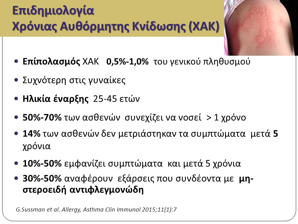 Επιδημιολογία Χρόνιας Αυθόρμητης Κνίδωσης ( ΧΑΚ ) Επίπολασμός ΧΑΚ 0,5%-1,0% του γενικού πληθυσμού Συχνότερη στις γυναίκες Ηλικία έναρξης 25-45 ετών 50%-70% των ασθενών συνεχίζει να νοσεί > 1 χρόνο 14% των ασθενών δεν μετριάστηκαν τα συμπτώματα μετά 5 χρόνια 10%-50% εμφανίζει συμπτώματα και μετά 5 χρόνια 30%-50% αναφέρουν εξάρσεις που συνδέοντα με μη - στεροειδή αντιφλεγμονώδη G.Sussman et al.