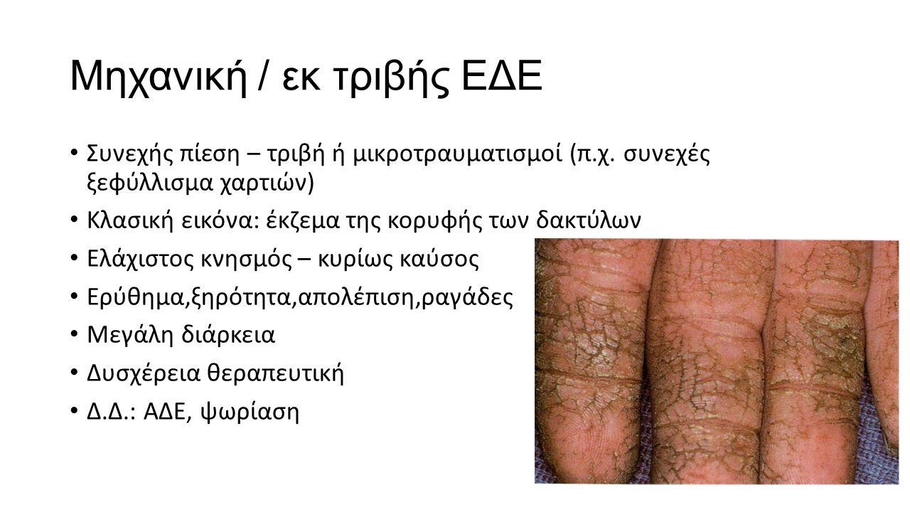 Μηχανική / εκ τριβής ΕΔΕ Συνεχής πίεση – τριβή ή μικροτραυματισμοί (π.χ. συνεχές ξεφύλλισμα χαρτιών) Κλασική εικόνα: έκζεμα της κορυφής των δακτύλων Ε