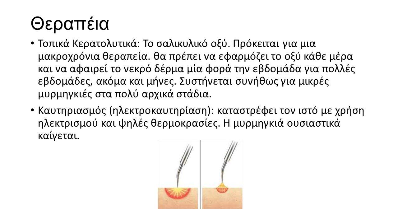 Θεραπέια Τοπικά Κερατολυτικά: Το σαλικυλικό οξύ. Πρόκειται για μια μακροχρόνια θεραπεία. θα πρέπει να εφαρμόζει το οξύ κάθε μέρα και να αφαιρεί το νεκ