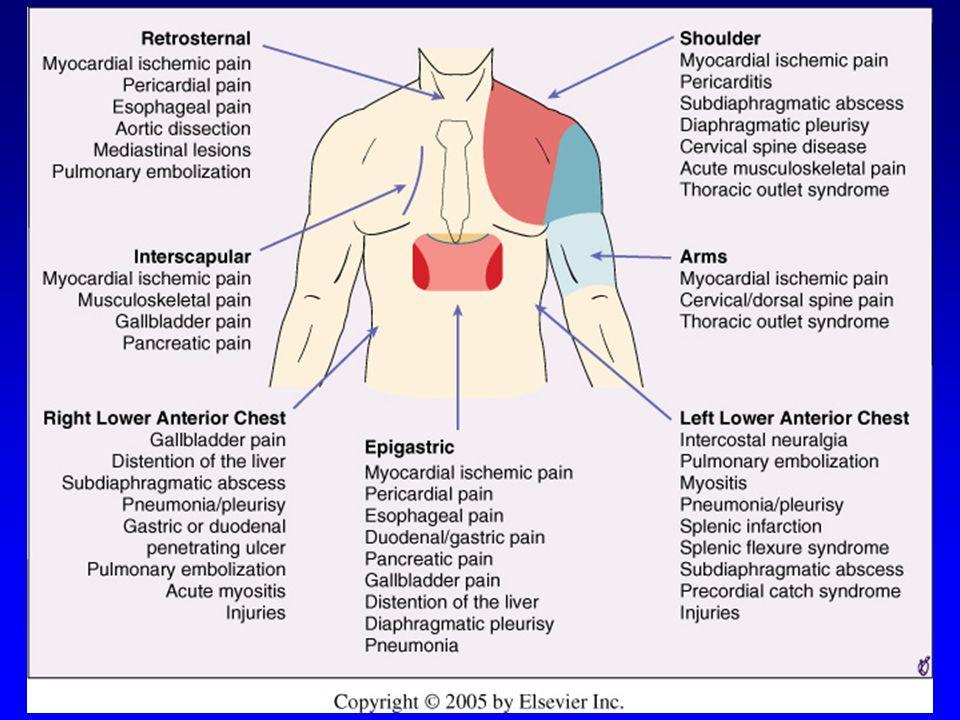 Χαρακτηριστικά διαφόρων τύπων θωρακικού άλγους ΧαρακτηριστικόΙσχαιμία μυοκαρδίου ΠερικαρδίτιδαΠλευριτικός πόνος Γαστρενετρικός πόνος ΜυοσκελετικόΔιαχωρισμός αορτής Ποιότητα πόνου Συνθλιπτικός, συσφικτικός ή ταινιοειδής Οξύς (ίσως συνθλιπτικός) ΟξύςΚαυστικόςΣυνήθως οξύς, μπορεί και αμβλύς όμως Οξύς, νυγμώδης, σαν σχίσιμο Εντόπιση Κεντρικός, πρόσθιος Οπουδήποτε (πολύ εντοπισμένος) ΚεντρικόςΟπουδήποτεΟπισθοστερνικ ά, ανάμεσα στις ωμοπλάτες Αντανάκλαση Λαιμός, σιαγόνα, χέρια Αριστερός ώμοςΣυνήθως όχιΣτο λαιμόΣτα χέρια ή γύρω από το θώρακα και στη πλάτη Μπορεί ανάμεσα στις ωμοπλάτες Επιδεινωτικοί και ανακουφιστικοί παράγοντες Χειρότερο με κόπωση, άγχος, κρύο.