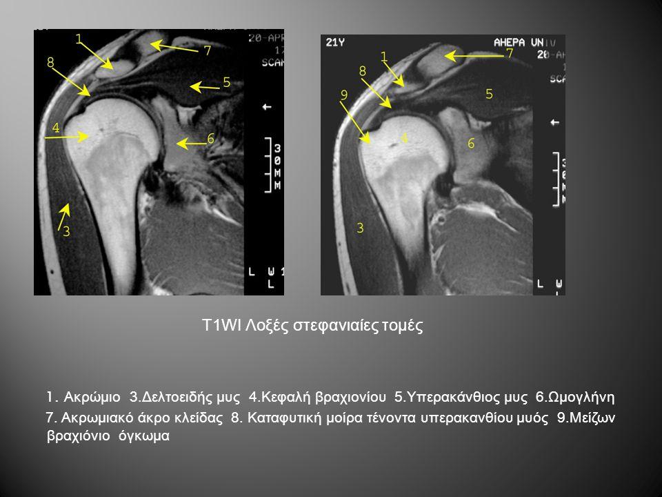 T1WI Λοξές στεφανιαίες τομές