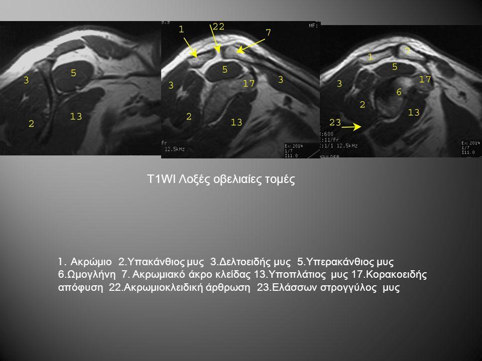 T1WI Λοξές οβελιαίες τομές