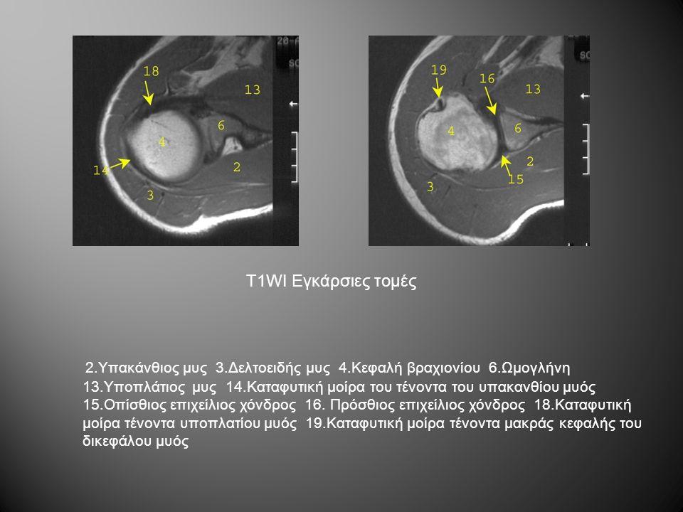 T1WI Εγκάρσιες τομές