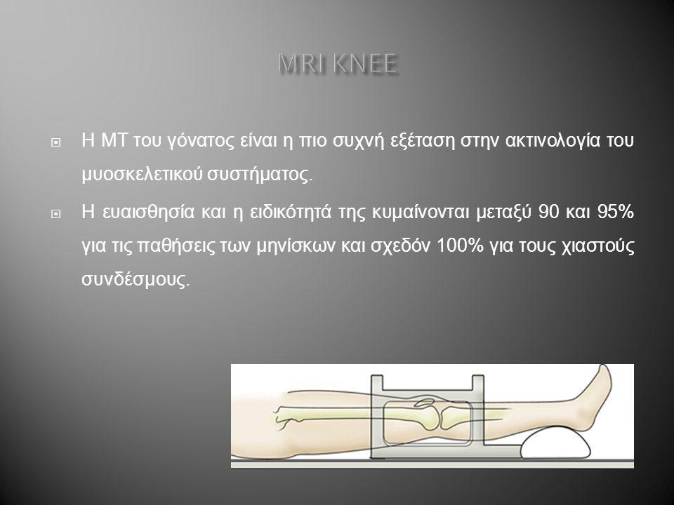  Η ΜΤ του γόνατος είναι η πιο συχνή εξέταση στην ακτινολογία του μυοσκελετικού συστήματος.