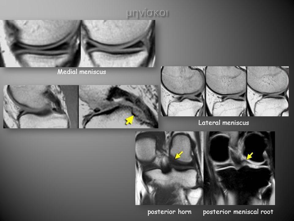 3.Δελτοειδής μυς 4. Κεφαλή βραχιονίου 5. Υπερακάνθιος μυς 6.