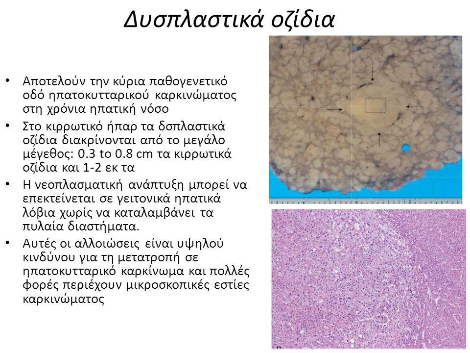 Δυσπλαστικά οζίδια Αποτελούν την κύρια παθογενετικό οδό ηπατοκυτταρικού καρκινώματος στη χρόνια ηπατική νόσο Στο κιρρωτικό ήπαρ τα δσπλαστικά οζίδια διακρίνονται από το μεγάλο μέγεθος: 0.3 to 0.8 cm τα κιρρωτικά οζίδια και 1-2 εκ τα Η νεοπλασματική ανάπτυξη μπορεί να επεκτείνεται σε γειτονικά ηπατικά λόβια χωρίς να καταλαμβάνει τα πυλαία διαστήματα.
