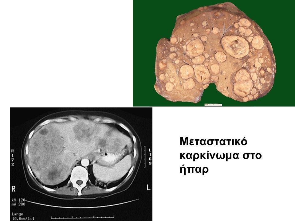 Μεταστατικό καρκίνωμα στο ήπαρ