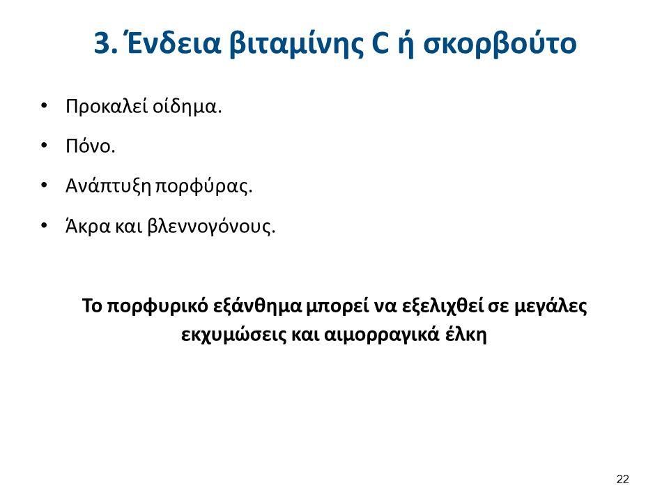 3. Ένδεια βιταμίνης C ή σκορβούτο Προκαλεί οίδημα.