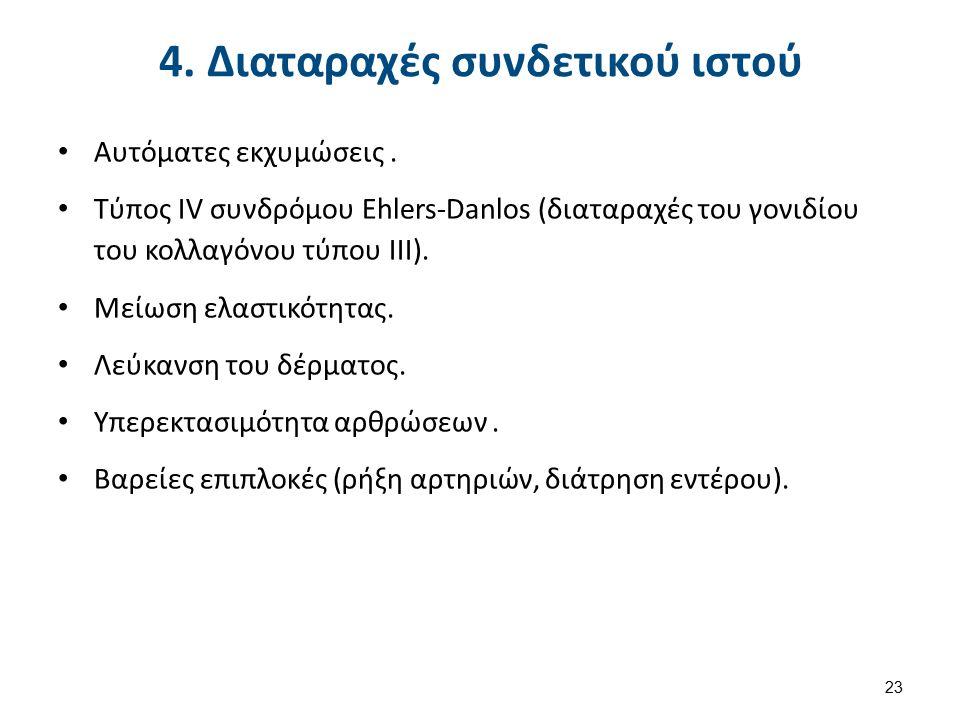 4. Διαταραχές συνδετικού ιστού Αυτόματες εκχυμώσεις.