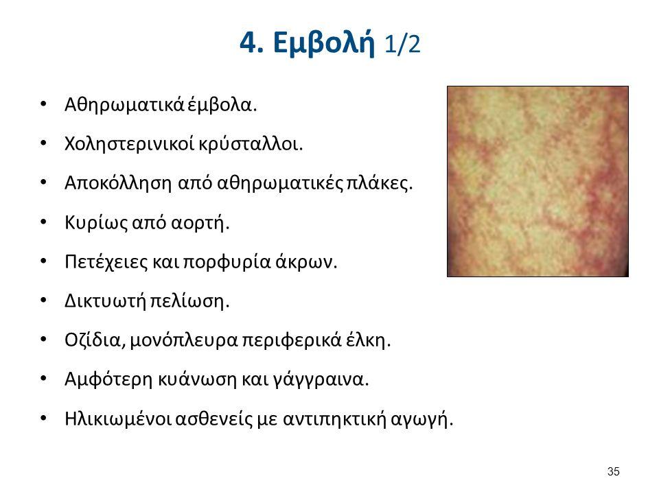 4. Εμβολή 1/2 Αθηρωματικά έμβολα. Χοληστερινικοί κρύσταλλοι.