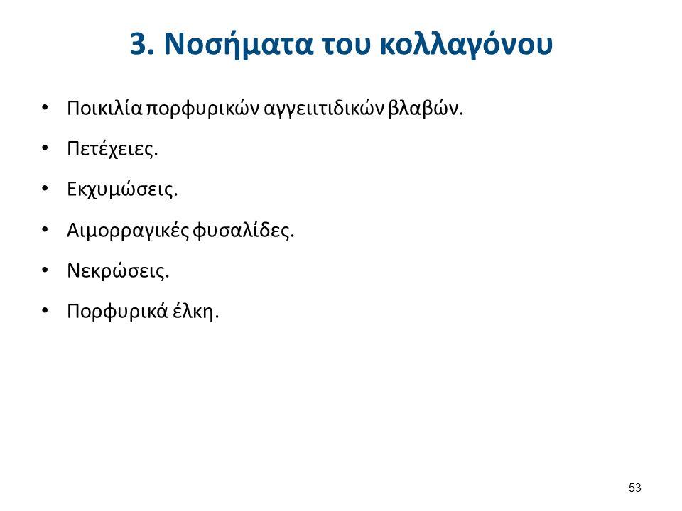 3. Νοσήματα του κολλαγόνου Ποικιλία πορφυρικών αγγειιτιδικών βλαβών.