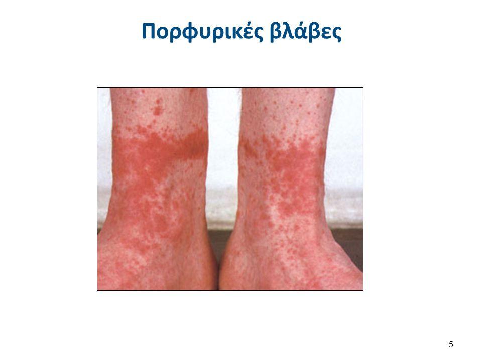 Κληρονομικές λειτουργικές διαταραχές αιμοπεταλίων Θρομβοασθένειες 56