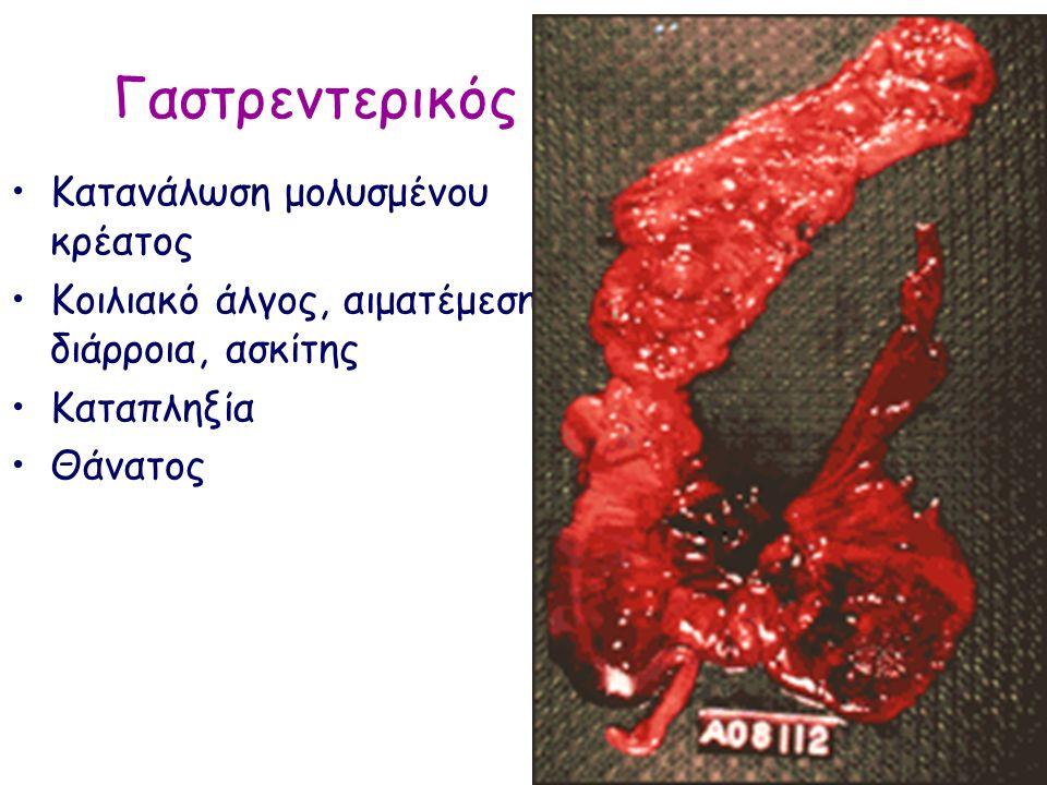 Γαστρεντερικός Κατανάλωση μολυσμένου κρέατος Κοιλιακό άλγος, αιματέμεση, διάρροια, ασκίτης Καταπληξία Θάνατος