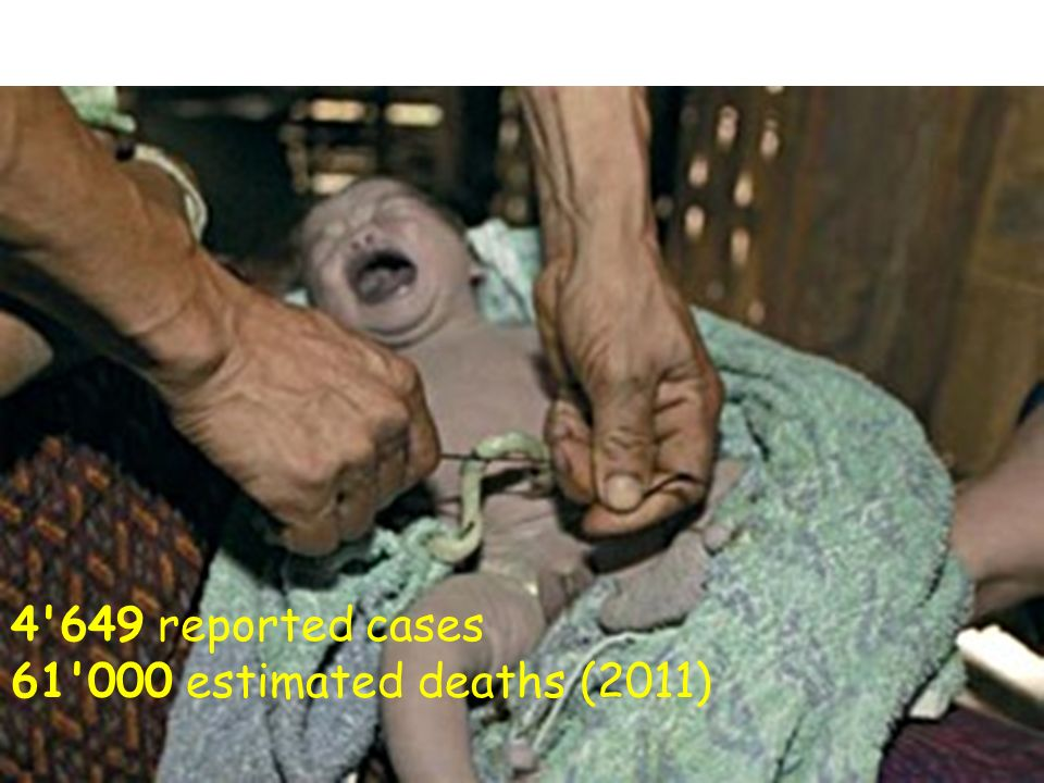 4 649 reported cases 61 000 estimated deaths (2011)