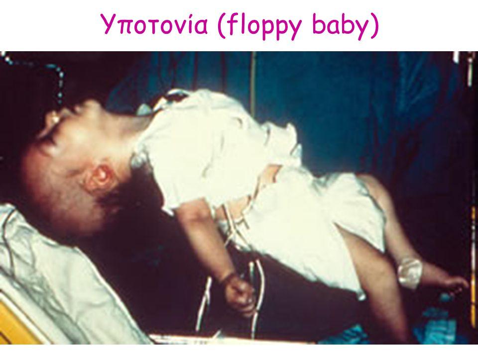 Υποτονία (floppy baby)